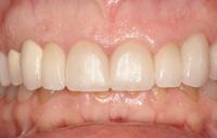 Soin dentaire Hongrie